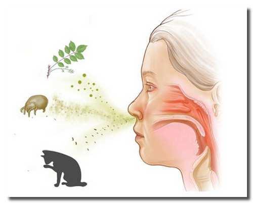аллергия_allergija