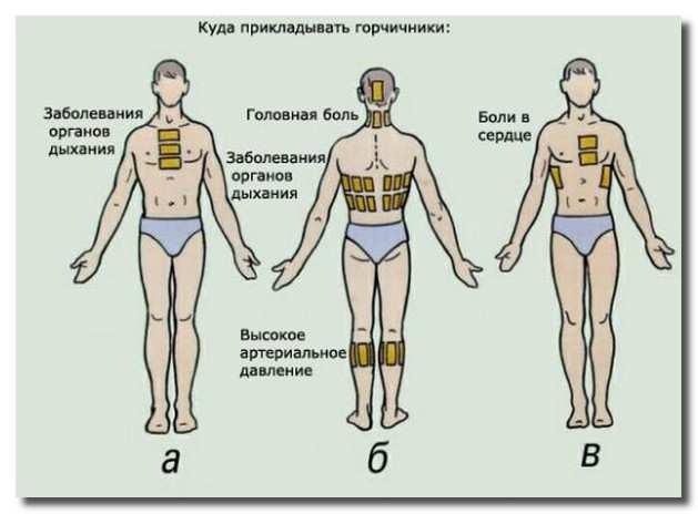 применение_горчичников_primenenie_gorchichnikov