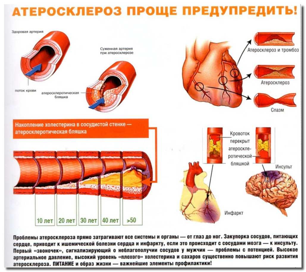 атеросклероз-ateroskleroz
