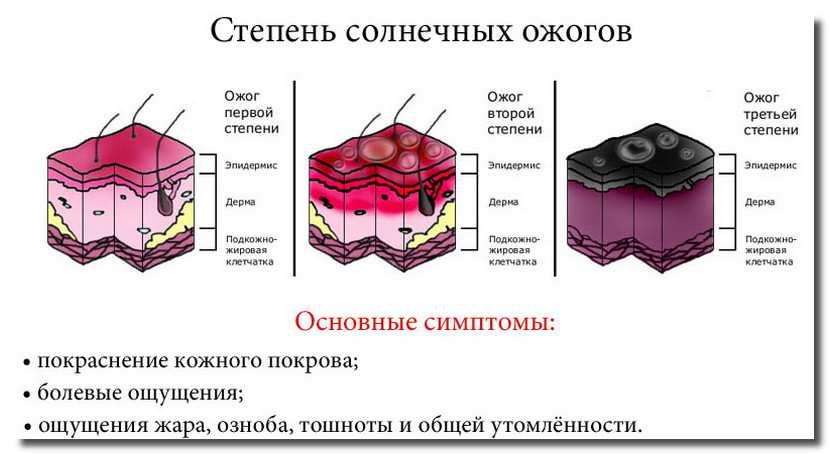 солнечные-ожоги-solnechnye-ozhogi